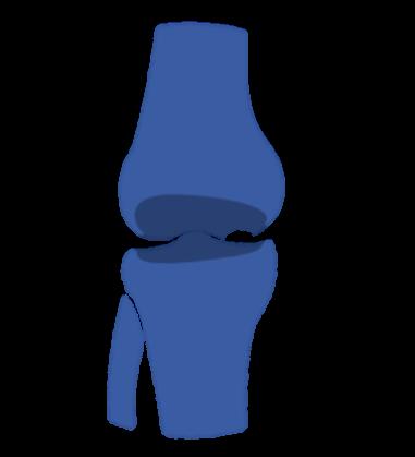 Necrosis Avascular. Prótesis de Rodilla