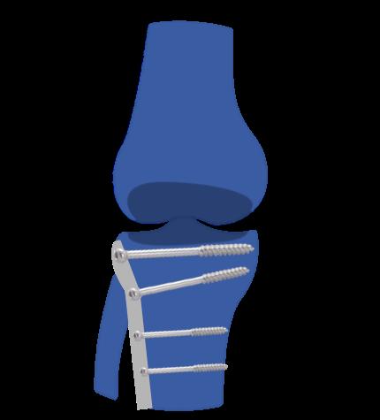 Prótesis Rodilla Artrosis postraumática. Secuela fracturas