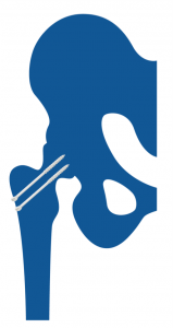 Prótesis de Cadera Artrosis postraumática de cadera