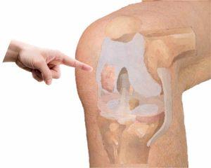 La necrosis ósea de rodilla suele debutar con un dolor brusco, incapacitante en la rodilla, que a veces va seguido con la presencia de derrame articular