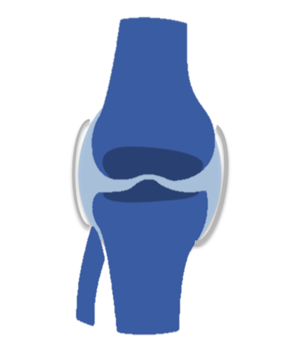 Rodilla- Artropatía inflamatoria