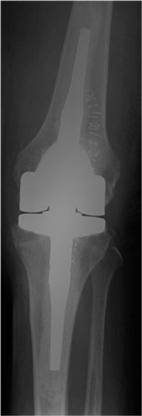 Imagen postquirúrgica tras implantar una PTR de revisión debido a la mala calidad ósea y estado ligamentoso. Obsérvese la cementación de los vástagos para mejorar la fijación del implante