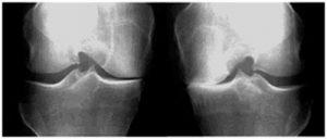 los pacientes con artrosis unicompartimental suelen tener la misma cantidad de dolor que aquellos que tengan una artrosis generalizada