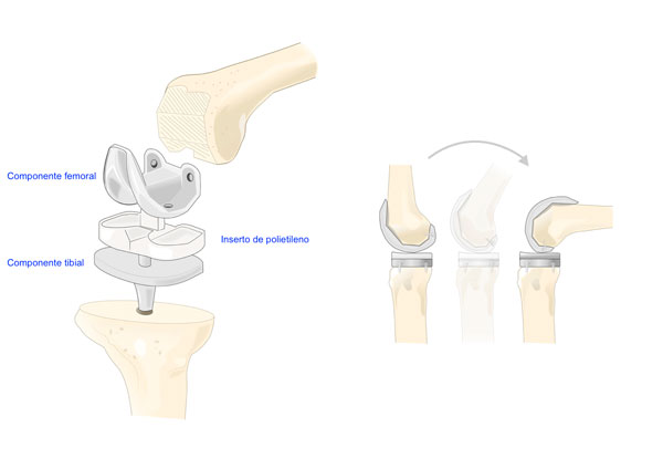 protesis-de-rodilla-dr-pablo-sanz