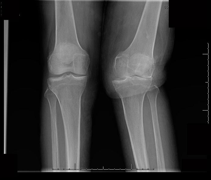Genu valgo en dos paciente con artritis reumatoide. Observe las diferencias entre la pierna izq normoalineada y la drch.