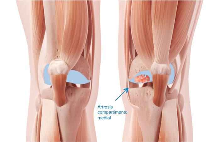 La artrosis unicompartimental de rodilla como su nombre bien indica es la degeneración de un compartimento de la rodilla, permaneciendo los otros dos restantes sanos
