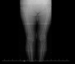 Artrosis compartimento medial rodilla drhc secundaria a meniscetomia hace 15 años