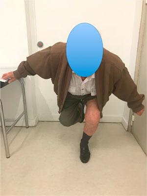 Paciente muy voluntarioso que muestra lo bien que se encuentra los 6 meses de ponerse una PTR en la rodilla izquierda