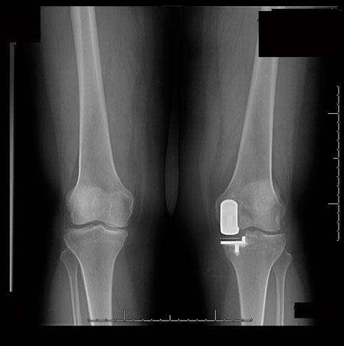 Imagen escopia intraquirúgica osteotomía de apertura tibial