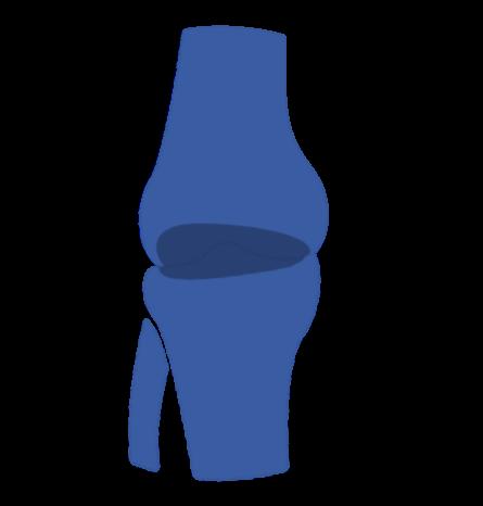 prótesis de rodilla gonartrosis u artrosis primaria por el especialista en prótesis de rodilla Dr. Pablo Sanz
