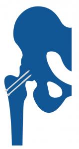 Artrosis postraumática de cadera