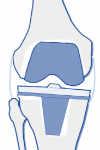 Aflojamiento de prótesis de rodilla