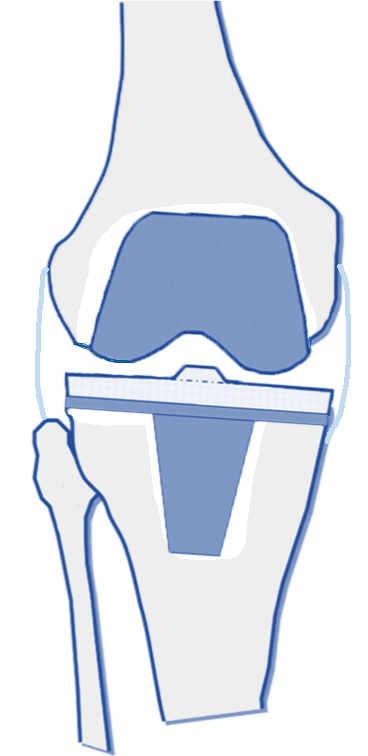 El aflojamiento de una prótesis de rodilla consiste en un fracaso en la fijación de la prótesis al cuerpo