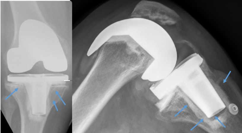 Aflojamiento componente tibial en prótesis de rodilla.