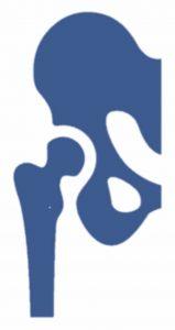 Artropatía inflamatoria de cadera es una destrucción de una articulación (artrosis) como consecuencia de una inflamación mantenida en la articulación
