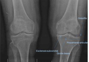 Diagnóstico de la artrosis de rodilla o gonartrosis por radiografía por el especialista en prótesis de rodilla Dr. Pablo Sanz