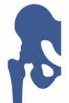 El especialista en cirugía protésica y traumatología, Dr. Pablo Sanz, nos habla de la coxartrosis o artrosis de cadera como su nombre indica consiste en el desgaste de la articulación de la cadera como consecuencia de su uso, envejecimiento, traumatismo, fracturas, etc.