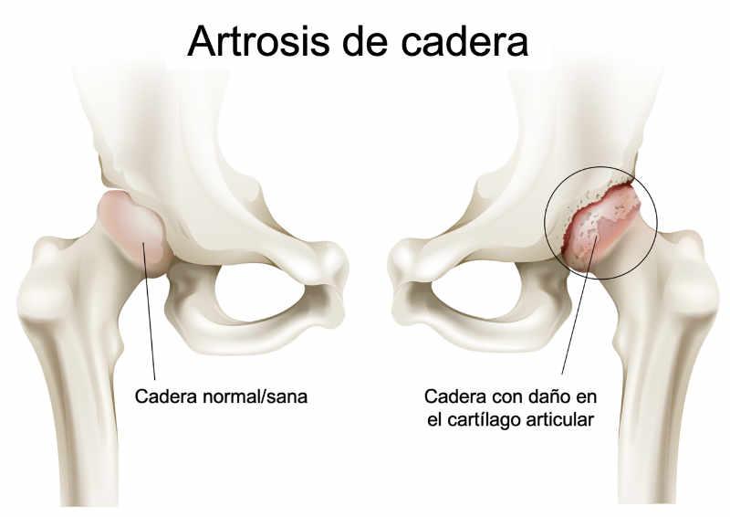 la artrosis se produce por una lesión progresiva de origen multifactorial que conlleva la perdía de la capacidad el cartílago articular de producir un deslizamiento entre los huesos en una articulación. Coxartrosis de cadera