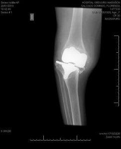 Fractura periprotésica de fémur distal. La paciente presenta además aflojamiento del componente tibial.