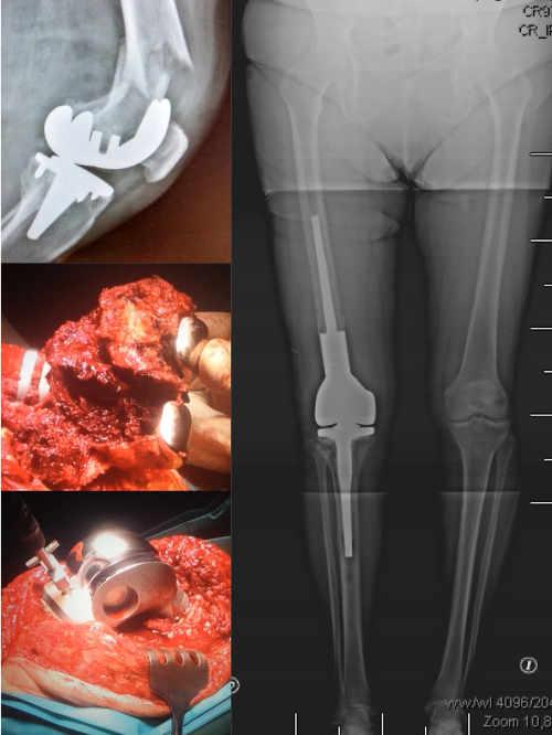 Fractura periprotésica de rodilla tratada mediante recambio protésico