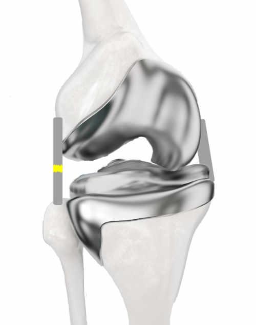 Inestabilidad como consecuencia de la lesión del LCP