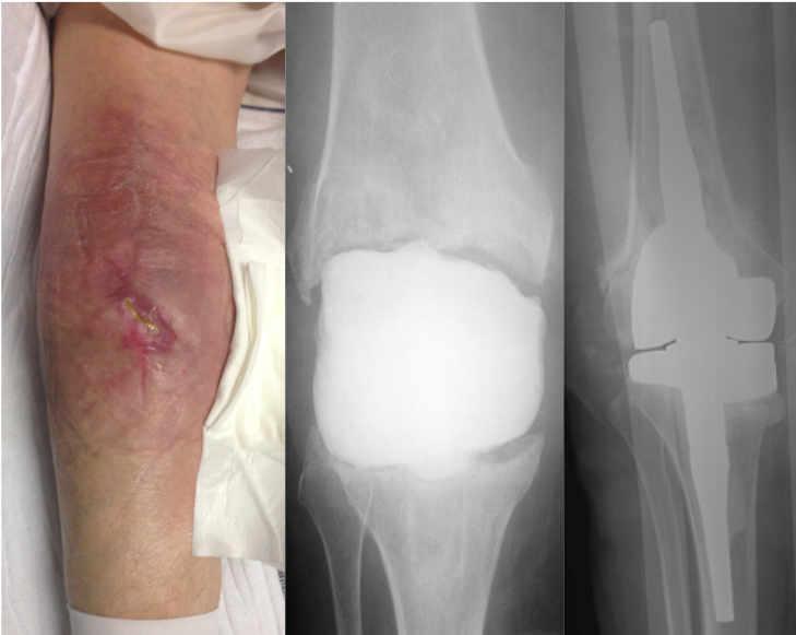 Recambio en dos tiempos de infección de prótesis de rodilla con espaciador estático. Posterior implantación prótesis tipo bisagra para intentar recuperar movilidad perdida.