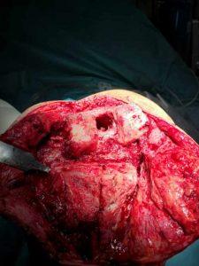 Desbridamiento radical realizado en paciente con infección protésica de rodilla con fracaso previo de un recambio en dos tiempos
