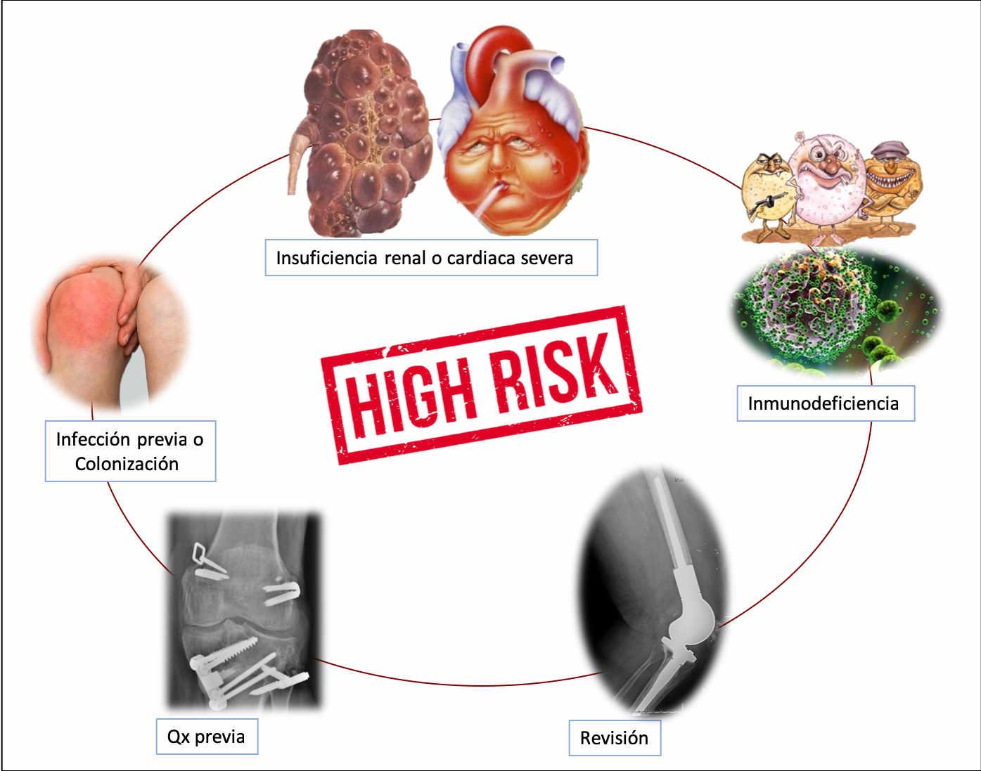 Factores de riesgo de las infecciones periprotésicas de rodilla