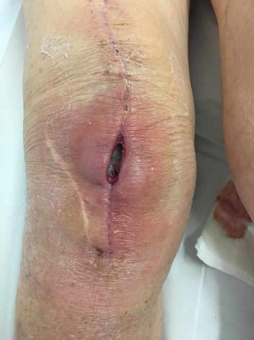 Dehiscencia herida tras 3 semanas como consecuencia de una infección aguda de prótesis de Rodilla