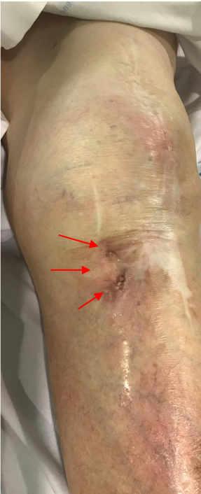 Fistula rodilla diagnostica de infección periprotésica