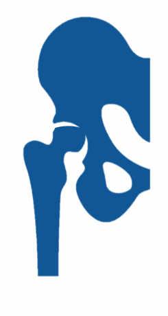 Necrosis avascular de cadera