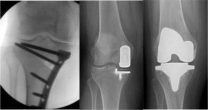 Osteotomía tibia alta en Necrosis Avascular de rodilla leve, artroplastia unicompartimental y artroplastia total de rodilla