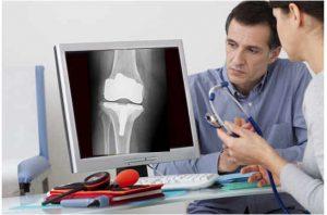 Es fundamental para un correcto diagnóstico de prótesis de rodilla dolorosa una adecuada historia clina y exploración dirigida.