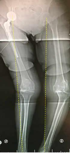 Radiografía de paciente mujer con Artrosis de rodilla o gonartrosis Especialista en prótesis de Rodilla