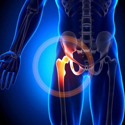 Revisión de prótesis de cadera dolorosa 2