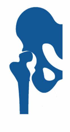 ecuelas patología cadera infantil