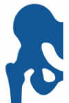 prótesis de cadera desartrodesis de cadera