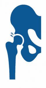 sindrome femoroacetabular de cadera por el especialista en traumatología y prótesis de cadera Dr. Pablo Sanz