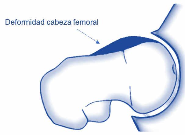 - Síndrome Femoroacetabular tipo cam (femoral): la deformidad se observa en el cuello femoral