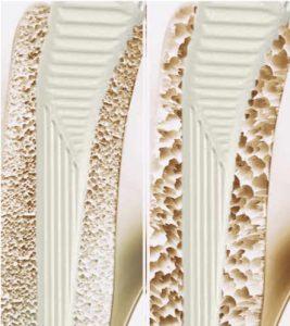 la posibilidad de tener una fractura periprotésica de cadera cuando el paciente padece osteoporosis es más elevada.