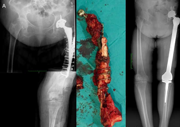 Caso extremo de desmontaje síntesis fractura periprotésica. Este paciente además presentaba una infección periprotésica.