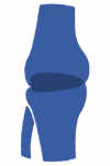 Gonartrosis rodilla