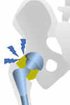Infección de Prótesis de Cadera