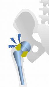 La infección protésica de cadera es sin duda la complicación más temida por pacientes, cirujanos e instituciones sanitarias tras la implantación de una prótesis articular.
