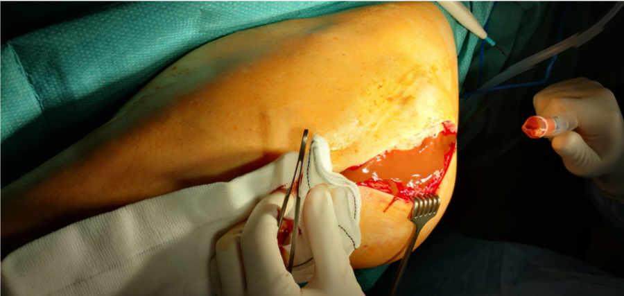 Dentro de la cadera que se observó al acceder quirúrgicamente a ella