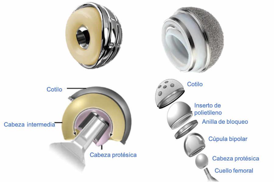 Cotilo sutilizados para tratar la luxación periprotésica. A la izquierda cotilo de doble movilidad y a la derecha cotilo constreñido tripolar
