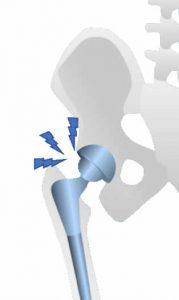 Revisión de prótesis de cadera dolorosa