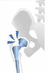 aflojamiento de prótesis de cadera