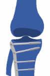 artrosis postraumáutica de rodilla