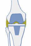 imágen de prótesis de rodilla tras infección después de la Cirugía protésica por el especialista en traumatología Dr. Pablo Sanz